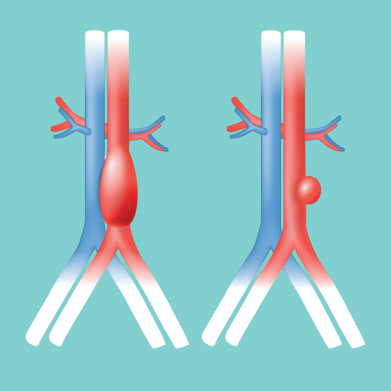 marfan-syndrome-aortic-aneurysms